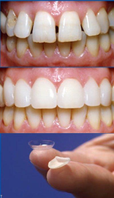آشنایی با لمینیت دندان و چگونگی انجام آن