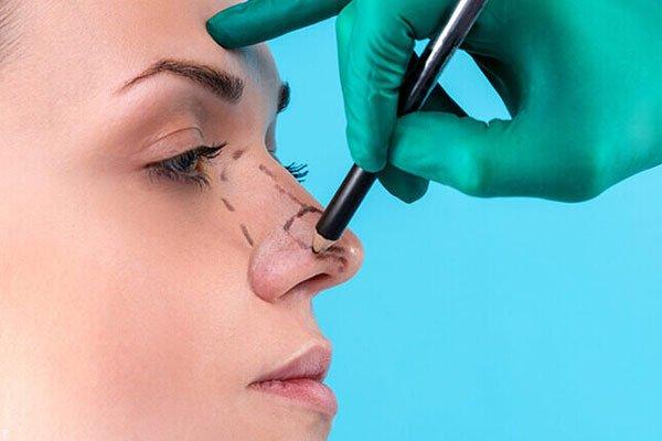 همه چیز درباره عمل جراحی زیبایی بینی