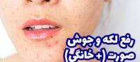 رفع لکه و جوش صورت (+ راهکار درمان جوش صورت)