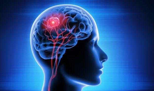 خطرناک ترین بیماری های مغزی کدامند؟