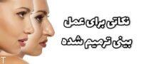نکاتی برای عمل بینی ترمیم شده (جراحی بینی ترمیمی)