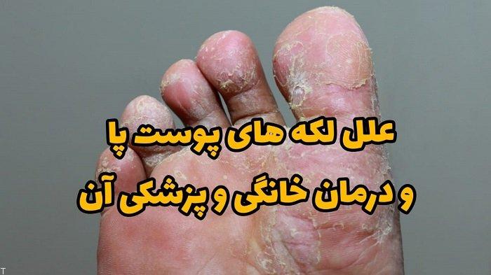 علل لکه های پوست پا و درمان خانگی و پزشکی