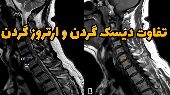 تفاوت دیسک گردن و ارتروز گردن