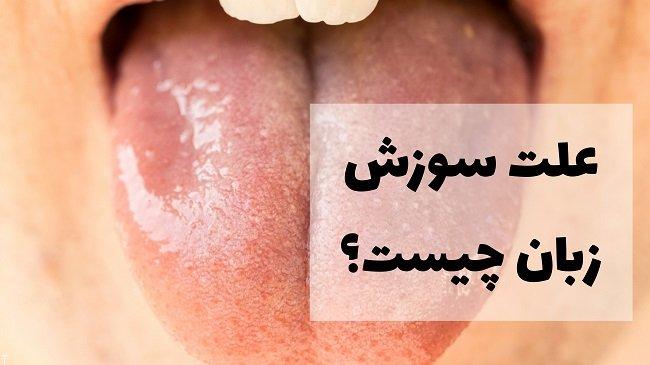 چند علت سوزش زبان و دهان + سایر روش های درمان سوزش زبان