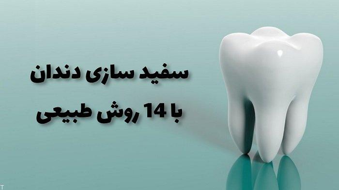 سفید سازی دندان با 14 روش طبیعی