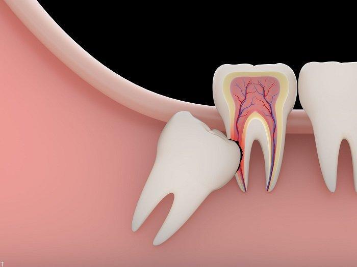 دندان عقل را بکشیم یا نه؟