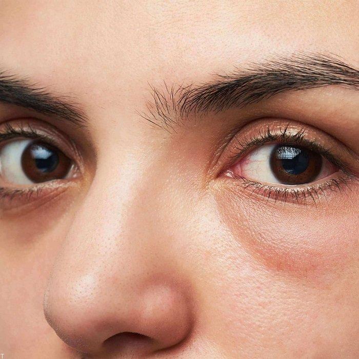 دلیل پف دور چشم و دلایل خستگی پلک